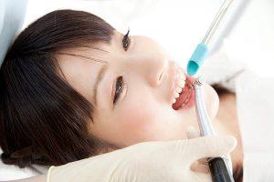 歯の黄ばみや着色を落とすクリーニング