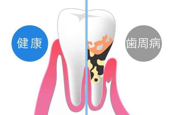 歯周病の症状